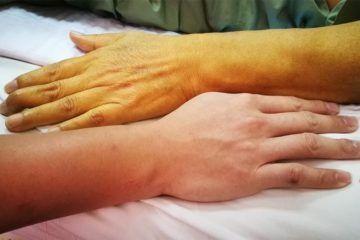 Ictericia, piel amarilla