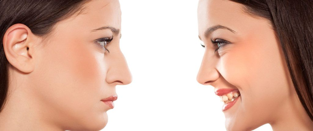 Rinoplastía cirugía de la nariz