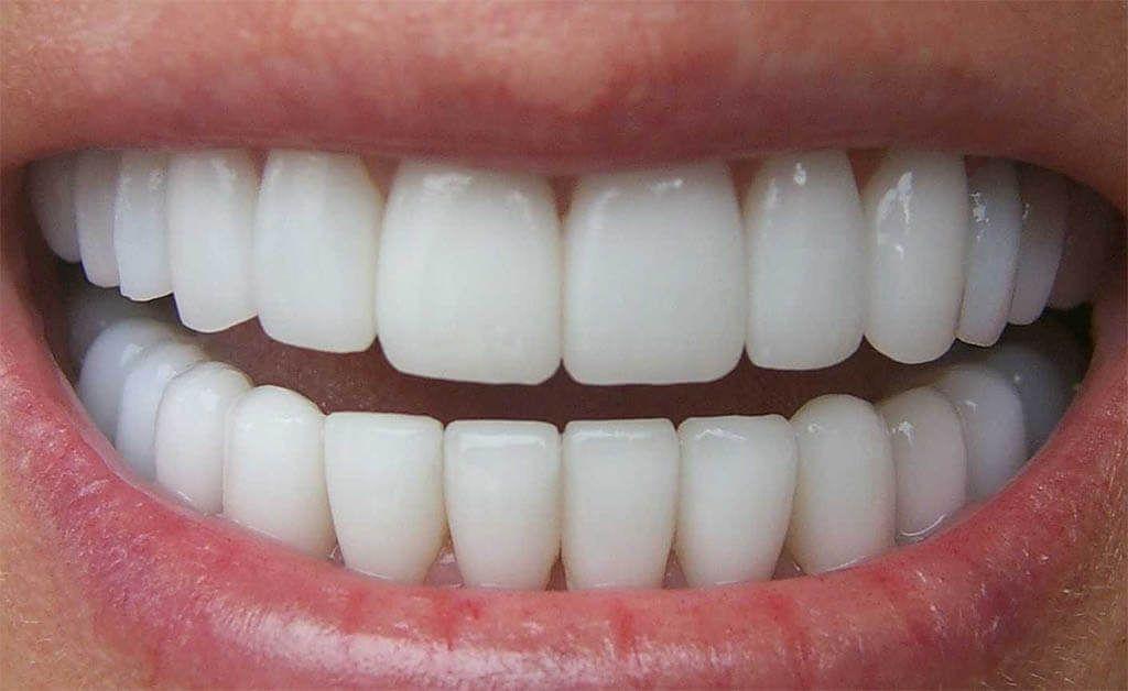 Beneficios de las coronas dentales