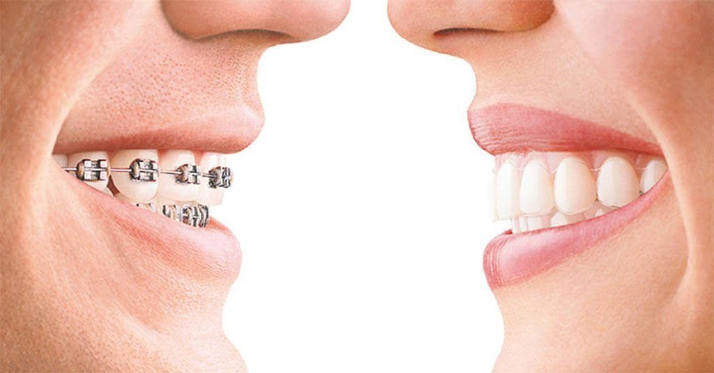 Invisalign como una alternativa a los brackets