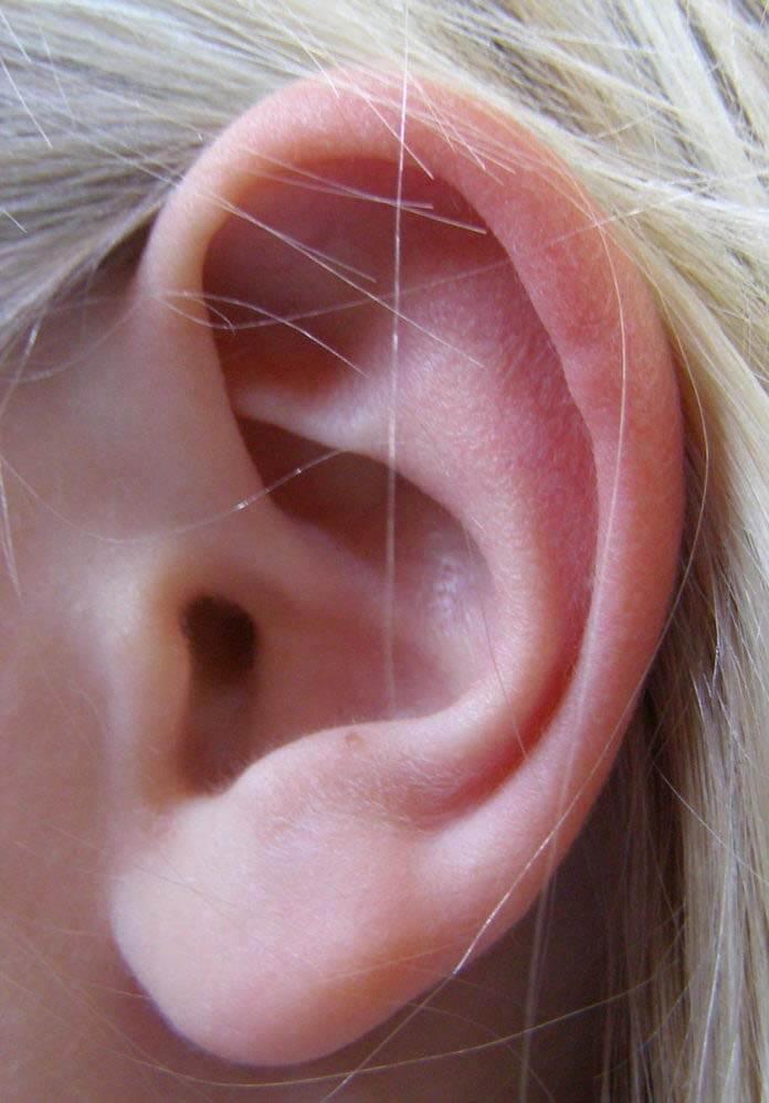 Otoplastia: cirugía de corrección de orejas