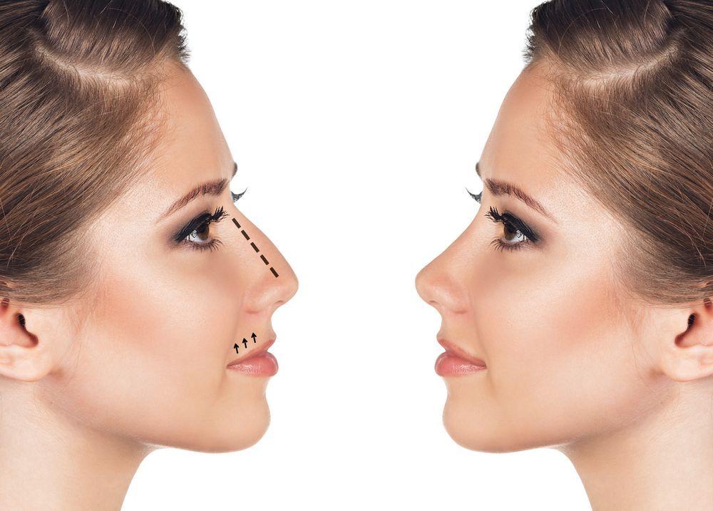 Reconstrucción de nariz con rinoplastía