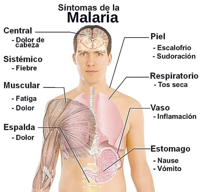Síntomas de Malaria durante un viaje