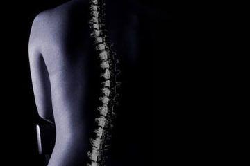 Escoliosis: deformación de la columna