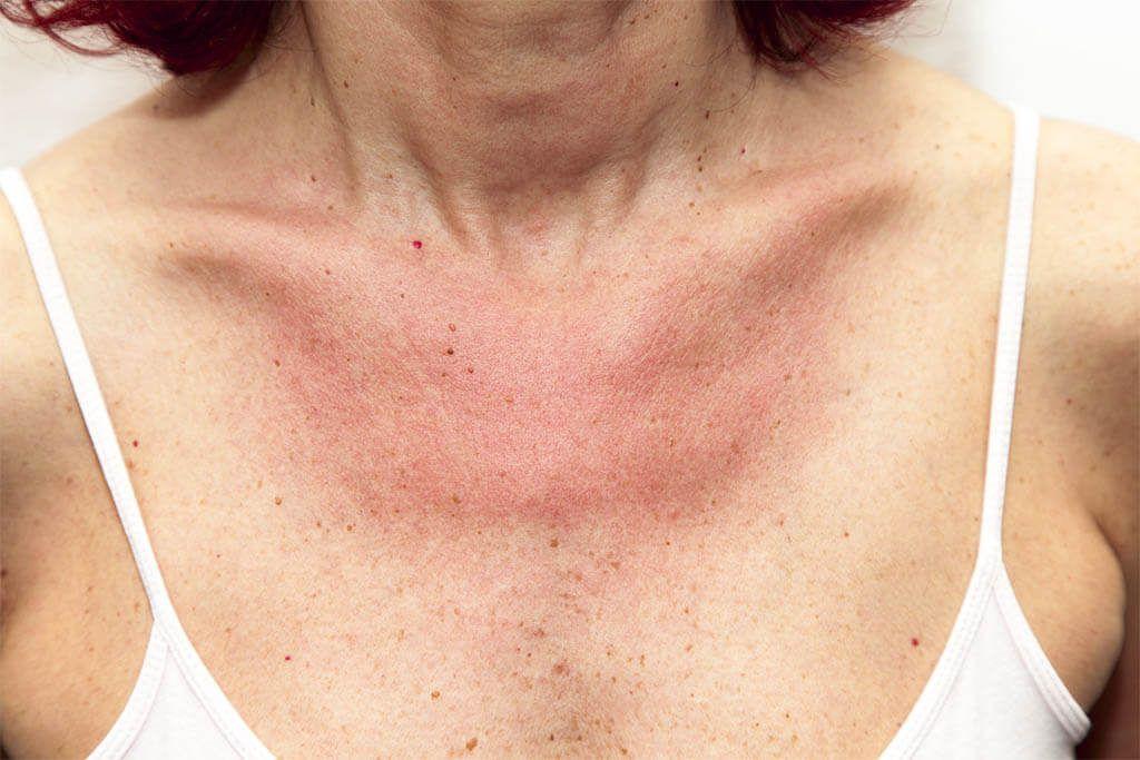 Síntomas de la alergia al sol