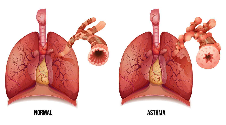 Pulmones asma