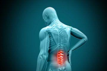 Ciatalgia o dolor en la parte baja de la espalda
