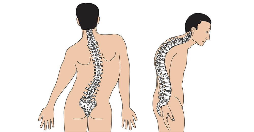 Columna vertebral con escoliosis