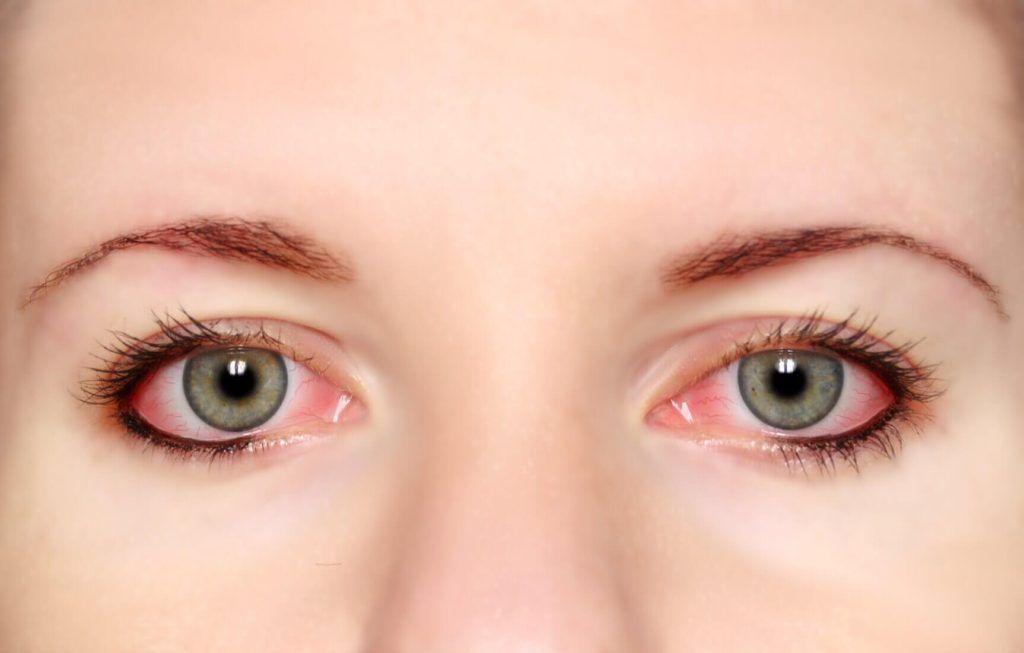 Síntoma de alergia: ojos irritados