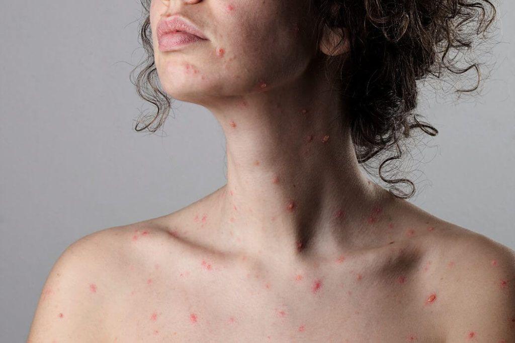 Los adultos son menos susceptibles de contraer varicela