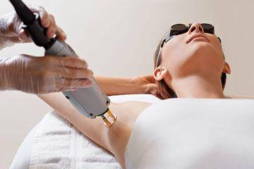 Métodos de depilación definitiva