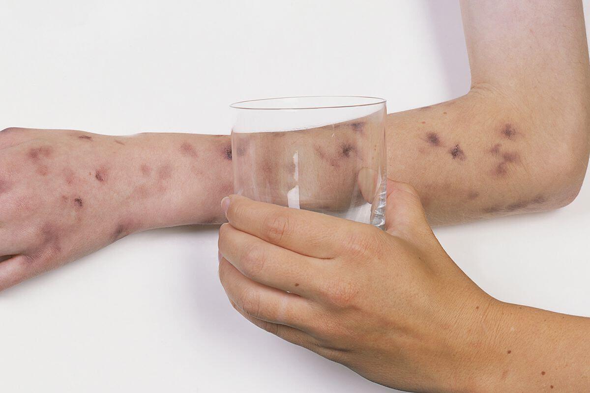 Síntomas de la Meningitis