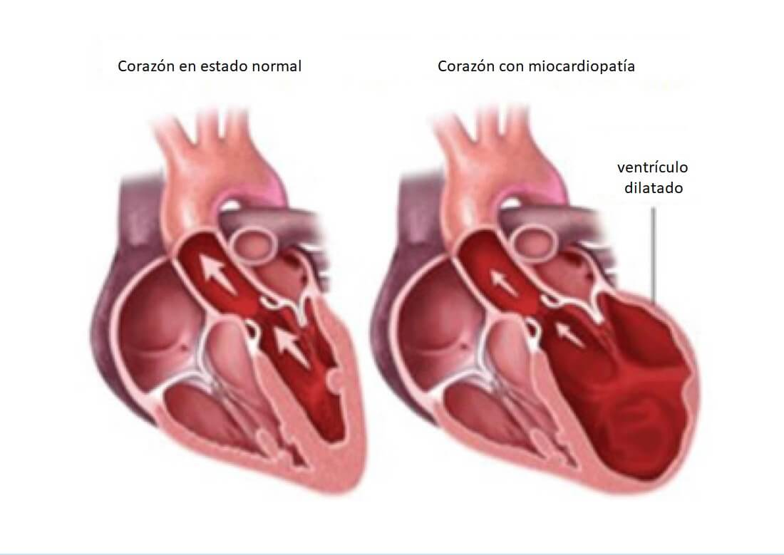 Corazón dilatado a causa de una miocardiopatía